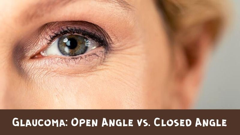 What is the Difference Between Open and Closed Angle Glaucoma